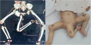 Condição rara faz bebê nascer com três pernas