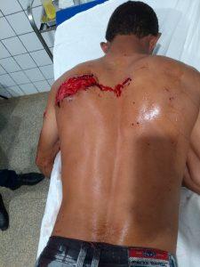 Vale do Anari: Após xingar a sogra durante discussão, homem é atacado a facadas pelos cunhados