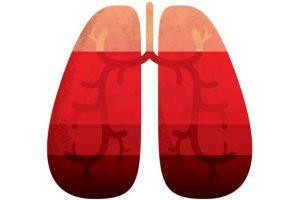 Cuidado: a pneumonia está no ar
