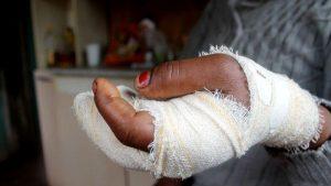 Motivado por ciúmes, marido quase arranca dedos da mão de mulher e vai preso