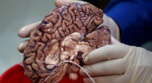 Empresa congela cérebro de pessoas que buscam a imortalidade